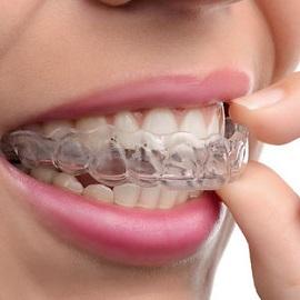 Zahnspange außenbogen feste Zahnspange